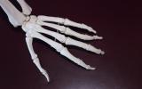 Svjetski dan borbe protiv artritisa